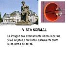 vista normal(como mira)